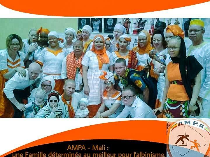 13 juin 2017, la Journée Internationale de sensibilisation à l'albinisme