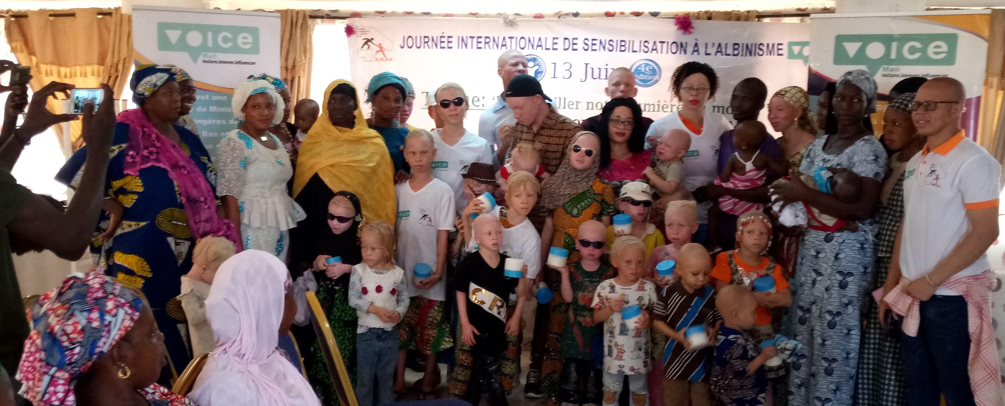 Association Malienne pour la Protection des Albinos